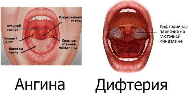 Отличие между ангиной и дифтерией