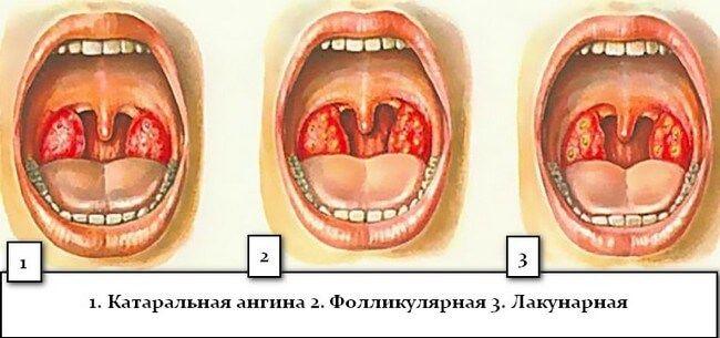 Разновидности ангин - катаральная, фолликулярная и лакунарная