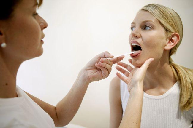 Перед началом лечения ангины необходимо посетить врача-отоларинголога