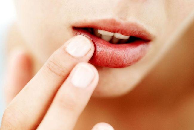 Одни из частых причин герпеса на губах - недостаток витаминов и простуда