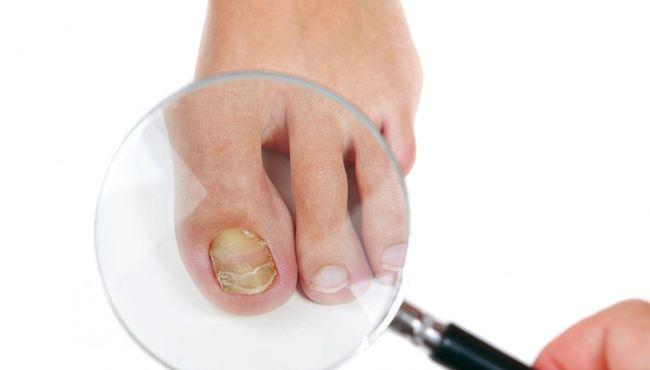 Ухаживая за ступнями, пораженными грибком, можно заразить свои руки.