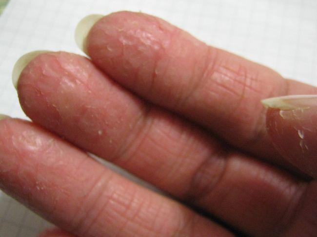 Грибок кожи рук (микоз) - это тревожный сигнал, который говорит, что с организмом не все в порядке.