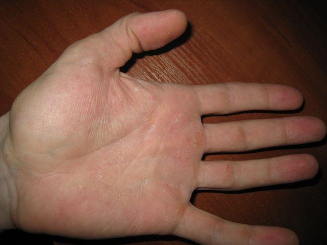 Зуд в ладонях - один из признаков микоза.