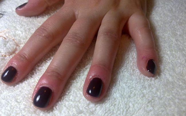 На фото показана паронихия - воспаление и отечность над ногтями.