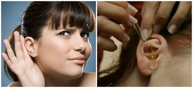 Для лечения отомикоза в ухо закапывают чесночный сок, который смешивают 1:1 с оливковым маслом