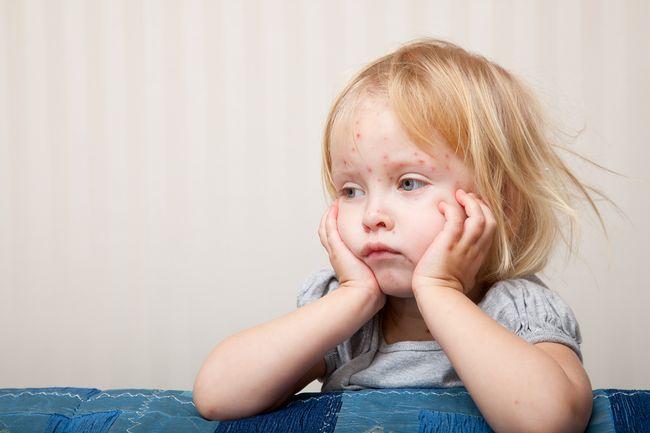 Краснуха не опасна для взрослого, но для ребенка она может стать настоящим испытанием