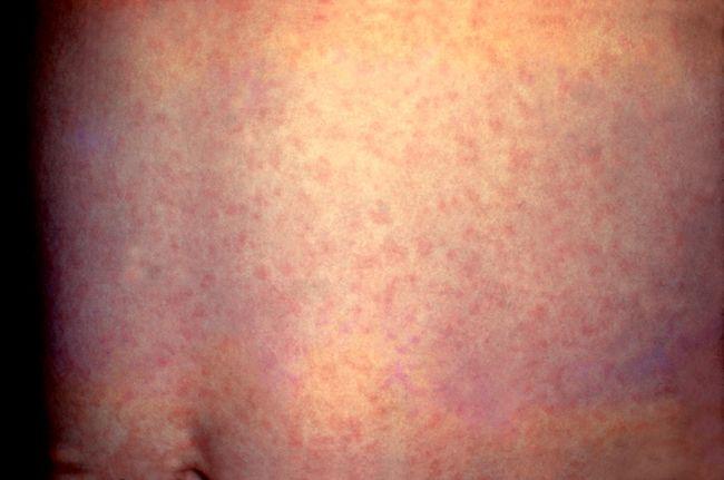 На фото показано, как выглядит сыпь от краснухи