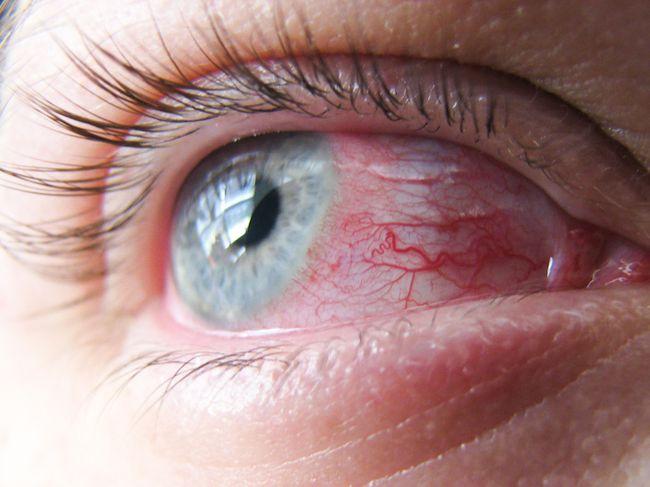 Краснуха чаще всего сопровождается коньюктивитом, который наступает спустя несколько дней после начала заболевания