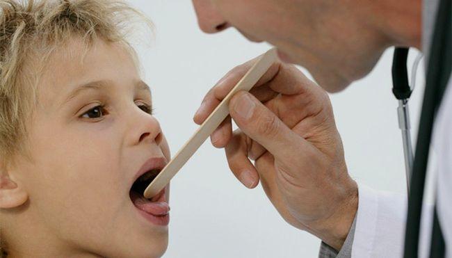 Лакунарная ангина особенно опасна для детского организма