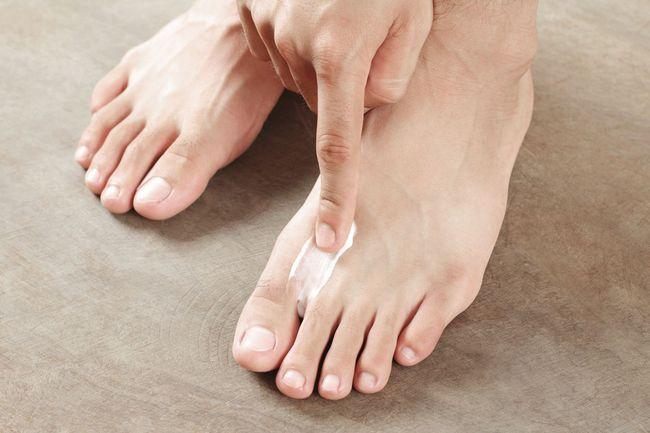 Микоз кожи трудно лечится, но вызывается очень просто. Одни из частых причин - вредные привычки и несбалансированное питание.