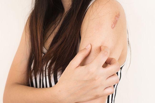 В случае выявления первых признаков микоза кожи - немедленно обратиться к врачу.