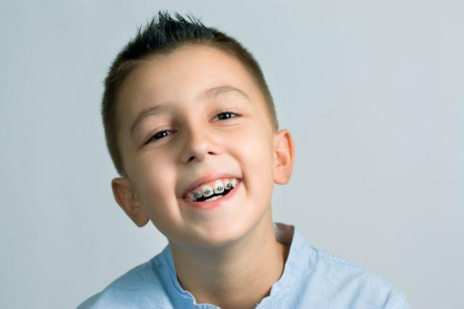 Плохо установленные стоматологом брекеты могут навредить слизистой