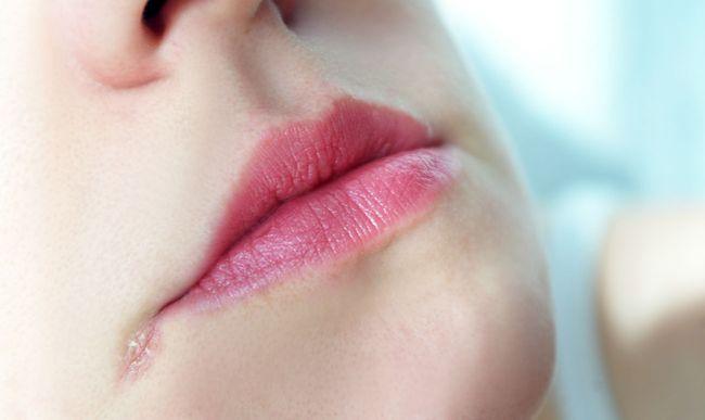 На фото показана кандидозная заеда в уголку рта
