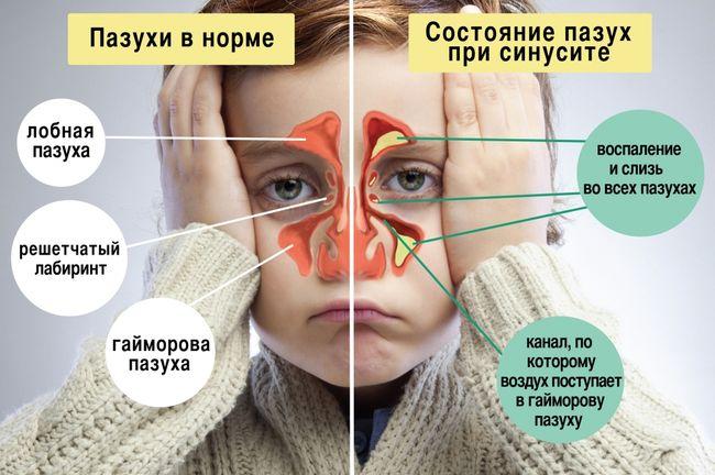 Дети часто болеют синуситом в результате осложнений после ОРВИ и других распространенных заболеваний