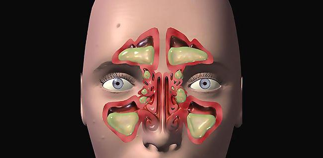 На фото показан воспалительный процесс в синусах