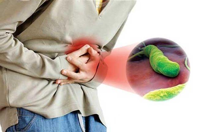 Симптомами бактерии хеликобактер пилори может быть гастрит, хронический гастродуоденит или язвенная болезнь