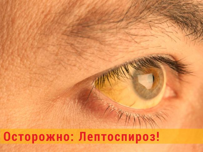 На второй стадии лептоспироза поражается печень и может возникнуть желтуха