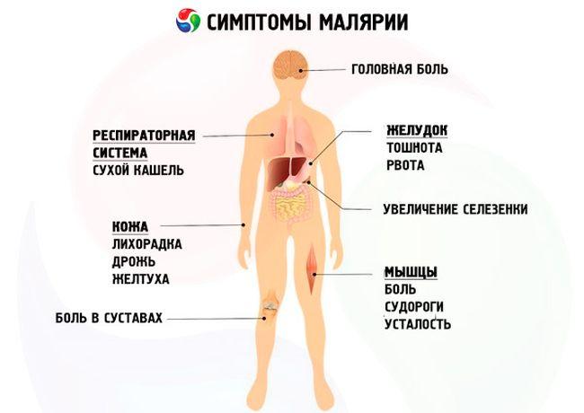 Основные симптомы при малярии