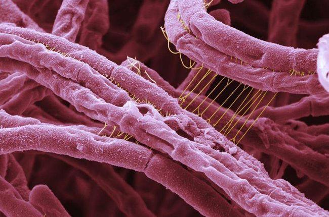 Bacillus anthracis - возбудитель сибирской язвы