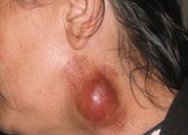 Туляремия поражает лимфатические узлы