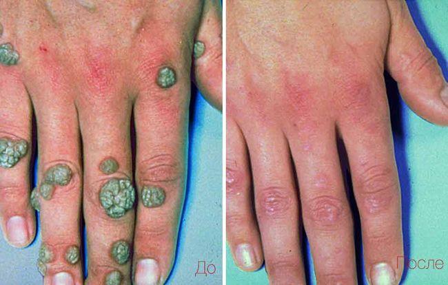 До и после лечения бородавок