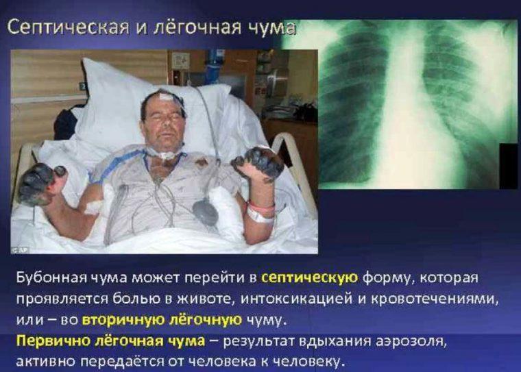 На фото септическая и лёгочная чума Бубонная.