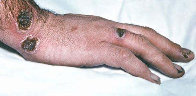 Проявление сибирской язвы на руке человека
