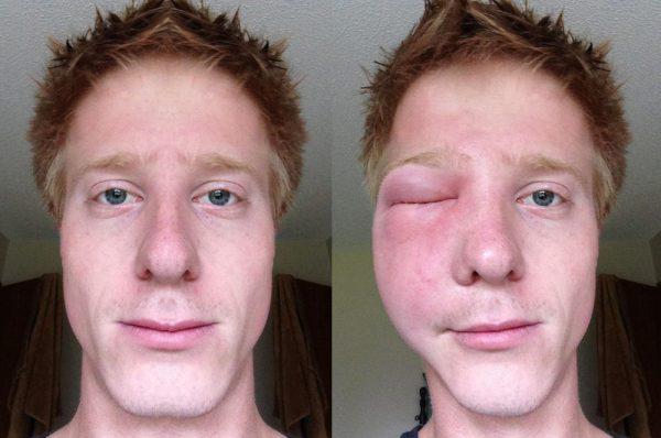 Кусая, шершень может нанести несколько атак подряд, при этом жало не останется в ране. Одиночные укусы активизируют воспаление в тканях, а множественные - сильнейшие аллергические реакции