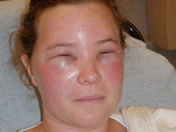 Очень сложно переносят укусы люди, склонные к аллергическим реакциям, так как у них может случится анафилактический шок. Если не будет оказана своевременная медицинская помощь, то в этом случае наступает смерть
