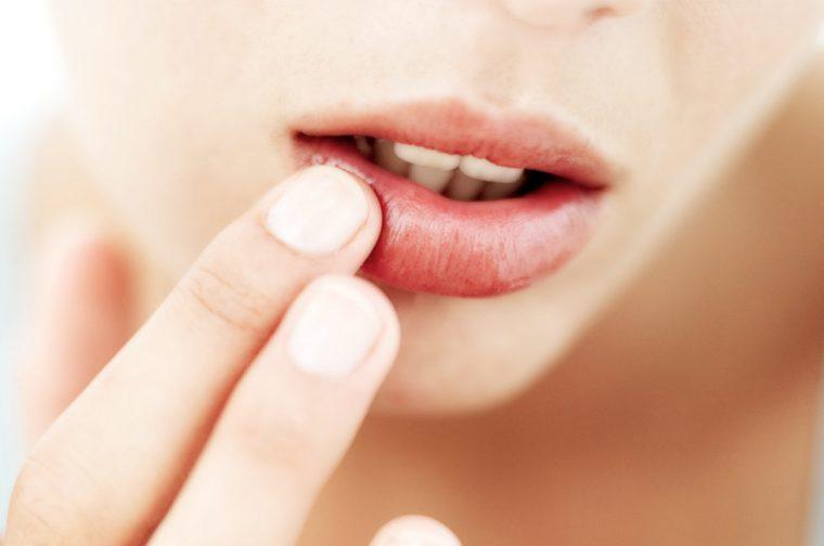 Кроме лечения герпесов, Ацикловир применяется для лечения еще ряда заболеваний