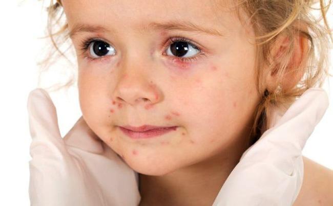 Прогноз менингита благоприятен, в случае своевременного обращения и адекватного лечения