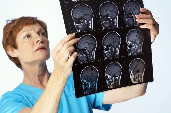 Схему лечения менингита назначают только после тщательного обследования