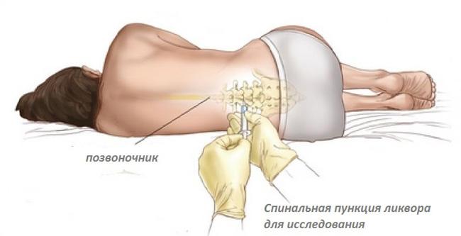 Люмбальная пункция – основная диагностическая процедура при выявлении менингита