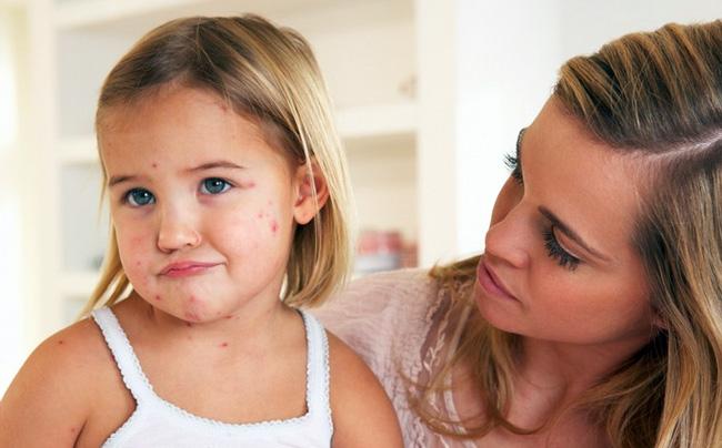 Таблетки Ацикловир не рекомендованы малышам до 3 лет. Таже препарат не назначают беременным