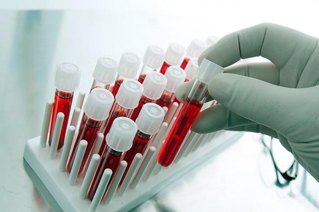 Для правильного лечения, важно правильно выявить возбудителя болезни. Забор биологического материала производят в той зоне, где наблюдается поражение
