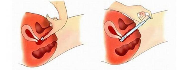Вагинальная таблетка ставится максимально глубоко во влагалище, для облегчения введения, таблетку можно слегка смочить или использовать специальный аппликатор, находящийся в упаковке препарата
