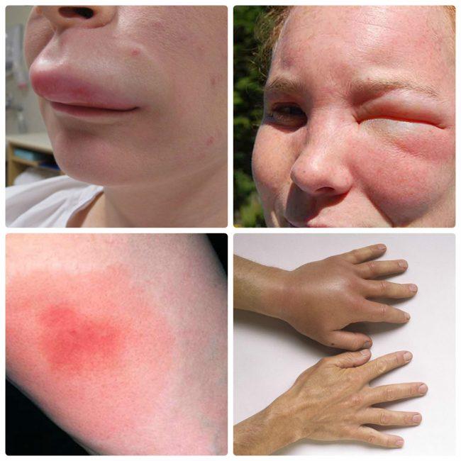 Склонным к аллергии людям медики советуют на всякий случай носить медицинский браслет или ожерелье, где было бы указано об их возможной реакции на укусы